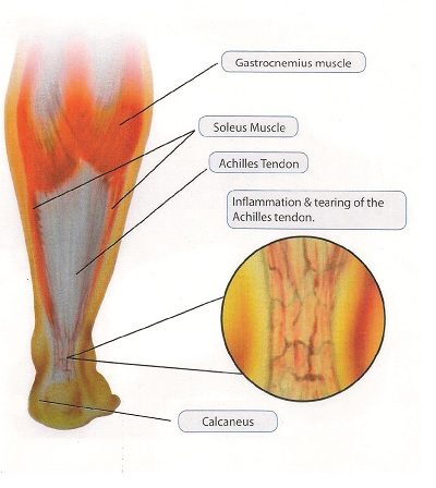 Achilles Tendonitis / Back of the Heel Pain image