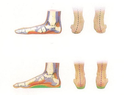 Exploring the Benefits of Orthotic Insoles for Common Sports Injuries image