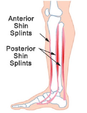 Shin Splints - A Painful Hazard for Sports People image