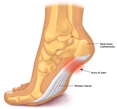http://bangorfootcare.co.uk/images/uploads/plantar-fasciitis.png title