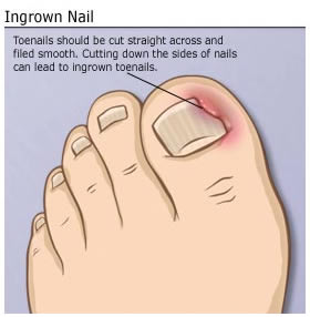 IngrownToenail image
